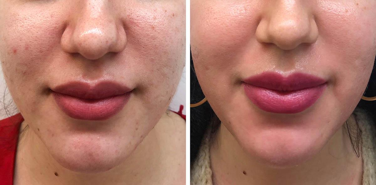 hiperandrogenismo, acné en mujer adulta