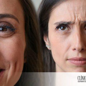 Ante la arruga de expresión, mejor prevenir que curar