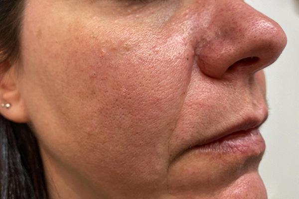 daño textural por por exceso de grasa en la piel