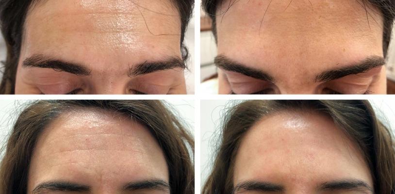 prevenir y eliminar arrugas de expresión