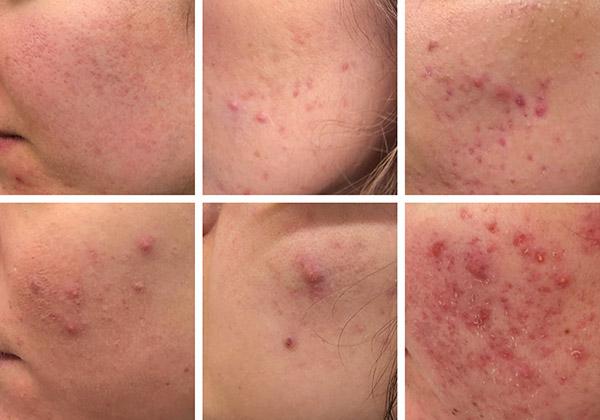 lesiones por exceso de grasa en el rostro