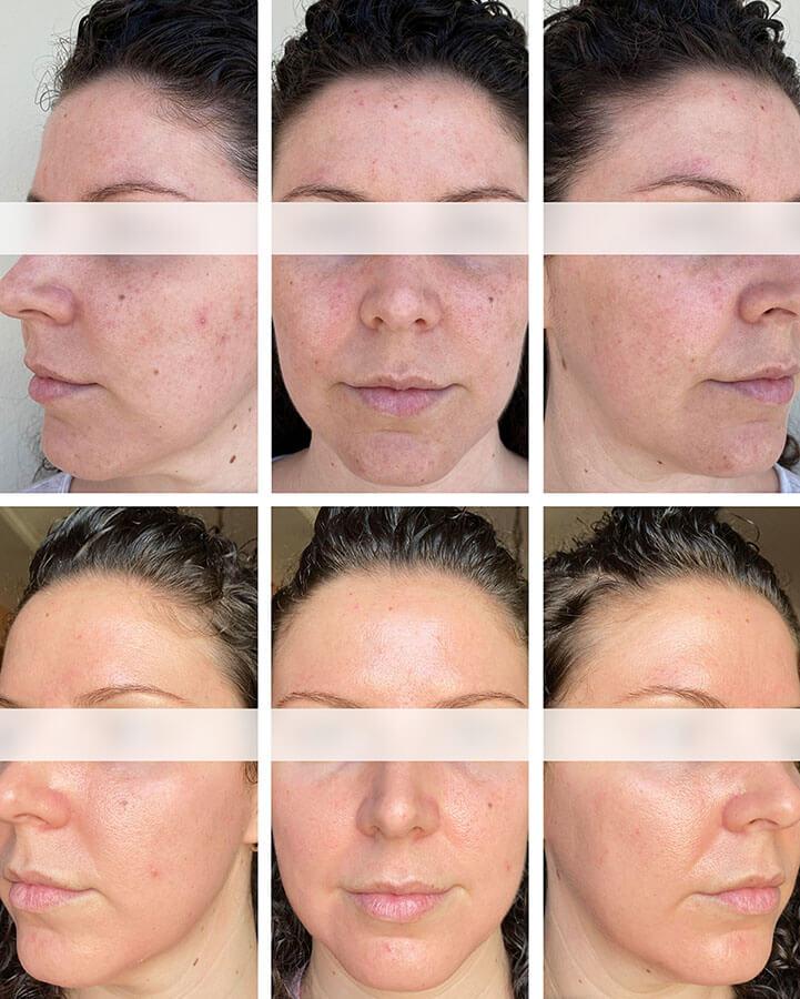 tratamientos combinados para caso de rosácea en clínica dermatológica Eguren Madrid