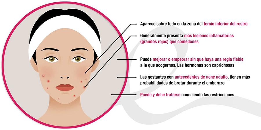 aparición de acné en mujeres embarazadas infografía