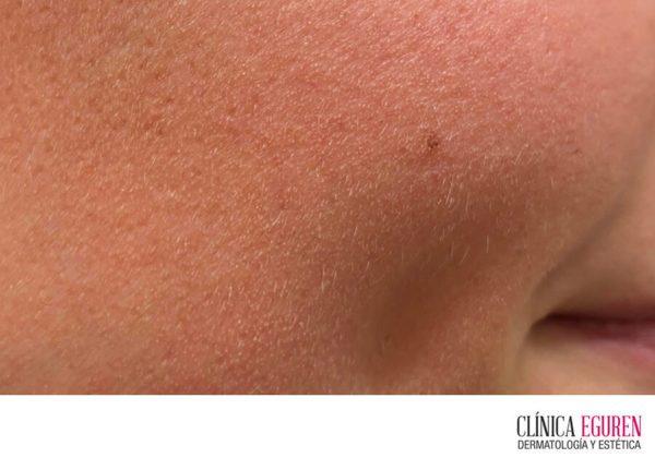 Demodex descubre cómo puede afectar a tu piel y su solución