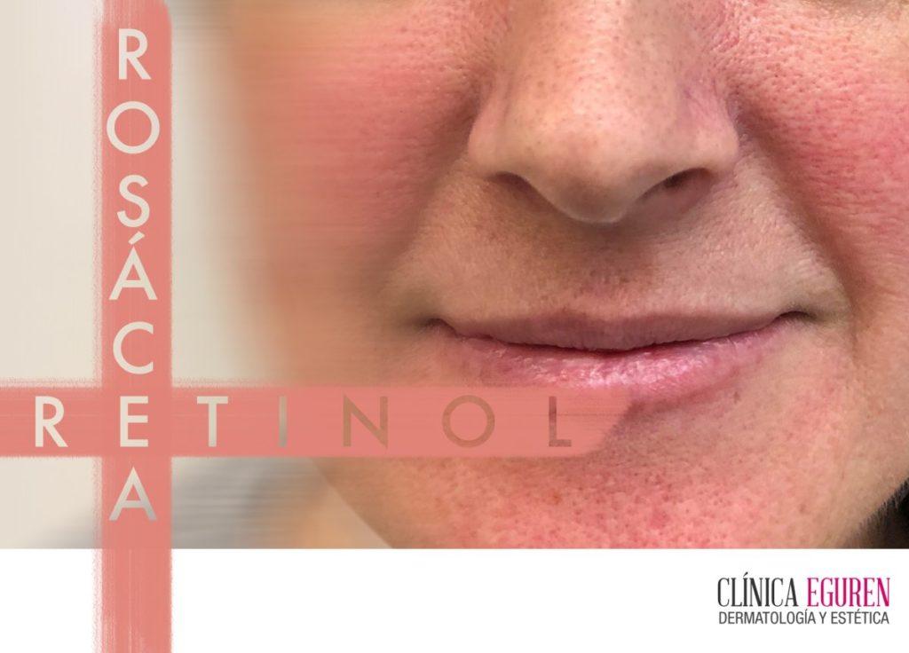 el uso del retinol en pieles con rosácea