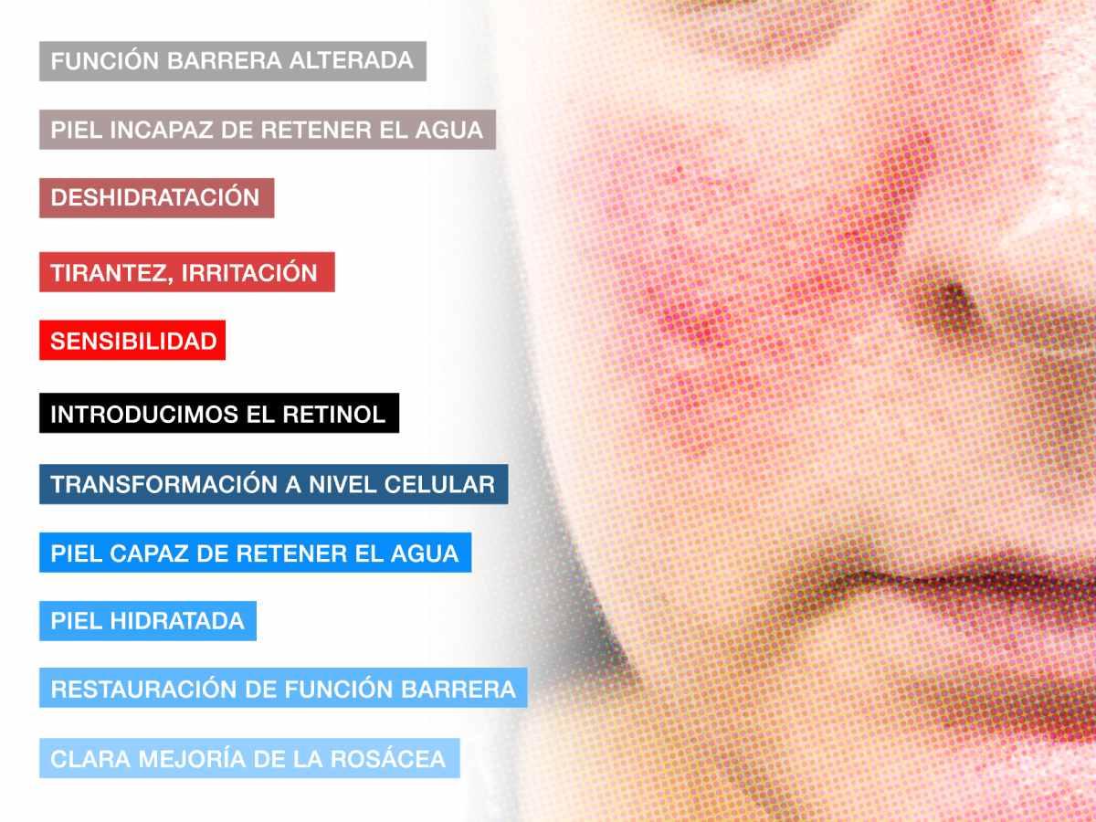 puede usarse retinol en piel con rosácea