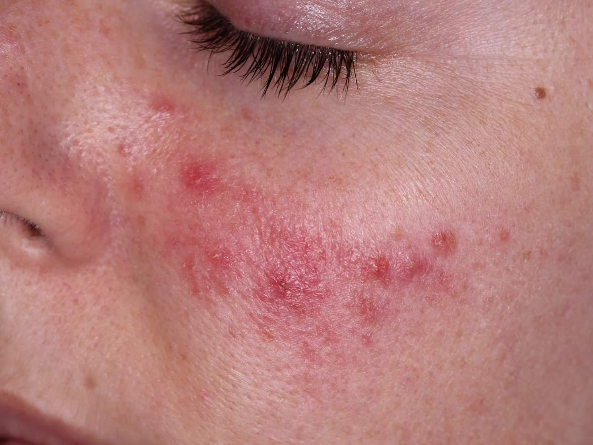 usar retinol pieles con rosácea