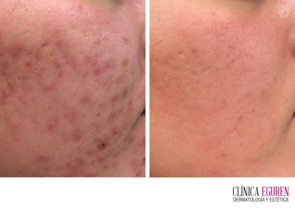 cómo prevenir cicatrices de acné y tratar cicatrices de acné una vez han aparecido