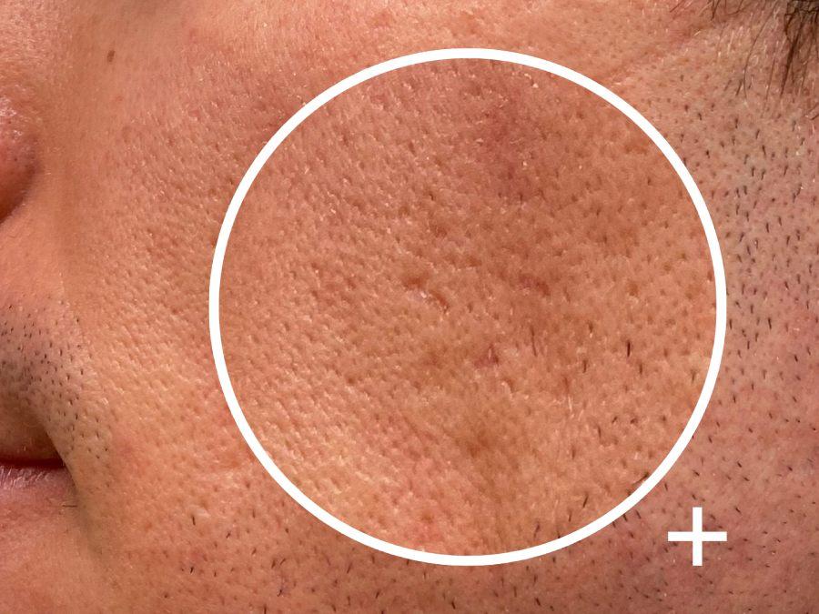 prevenir y tratar cicatrices de acné