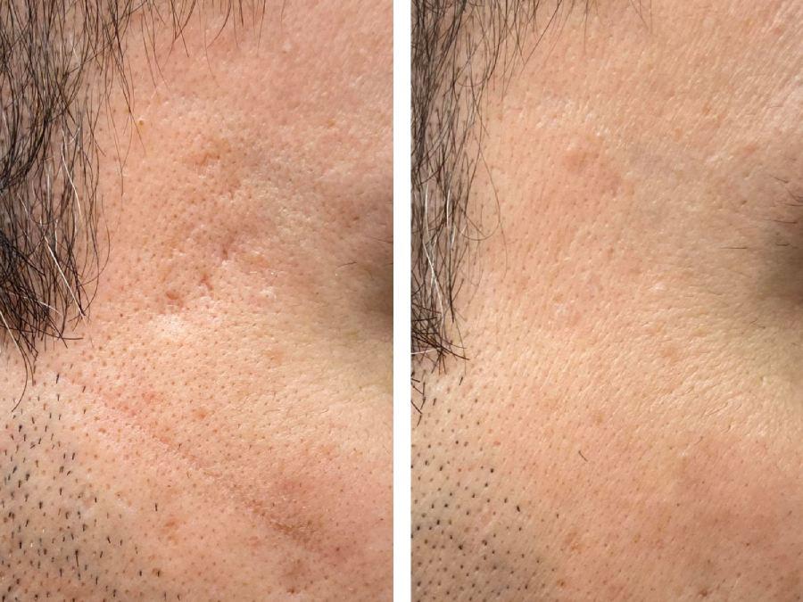 tratar cicatrices de acné